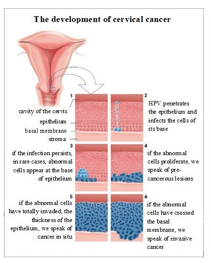 hpv cervical cancer strains)