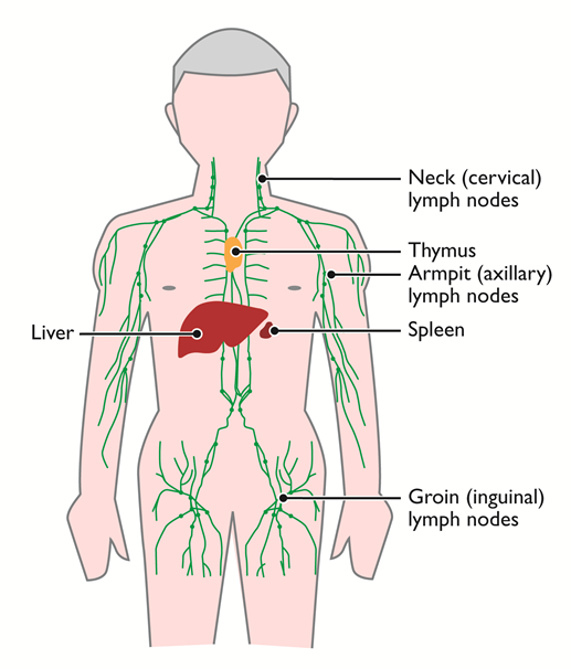 testicular cancer to lymph nodes)