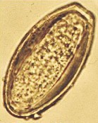 egg of oxyuris equi)