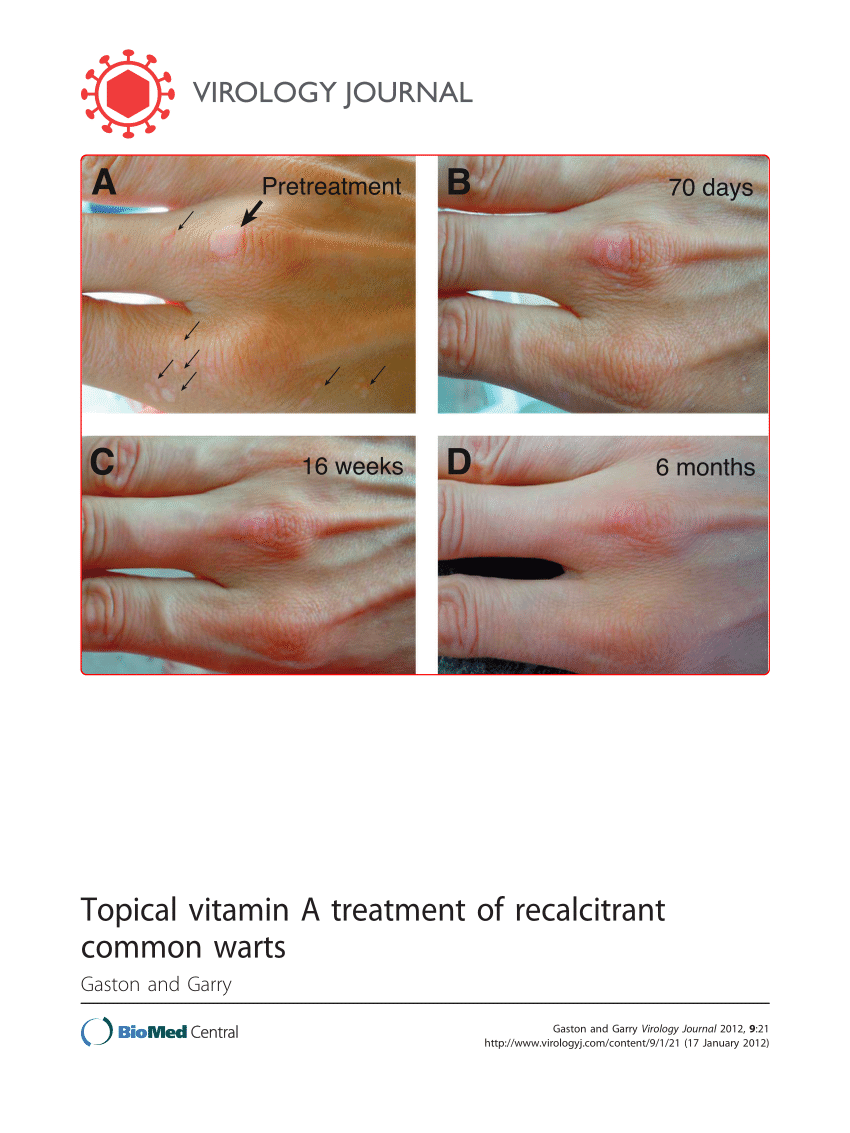 wart treatment topical)