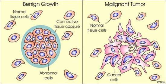 cancer vs benign cancer de col uterin