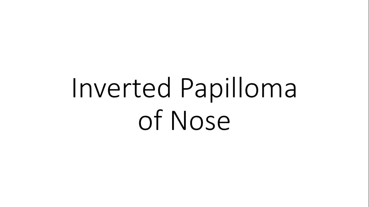 inverted papilloma nose ppt