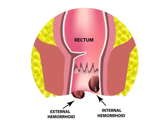 rectal cancer vs hemorrhoid
