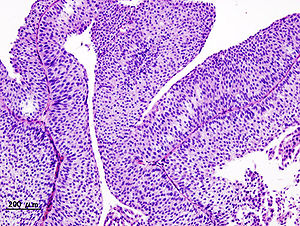 a papillary urothelial neoplasm