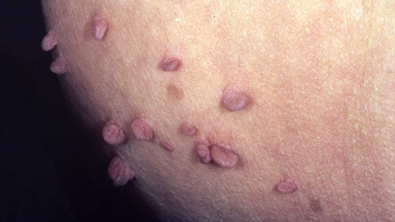 warts on skin folds)