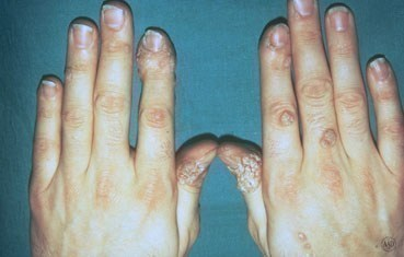 warts on hands keep spreading