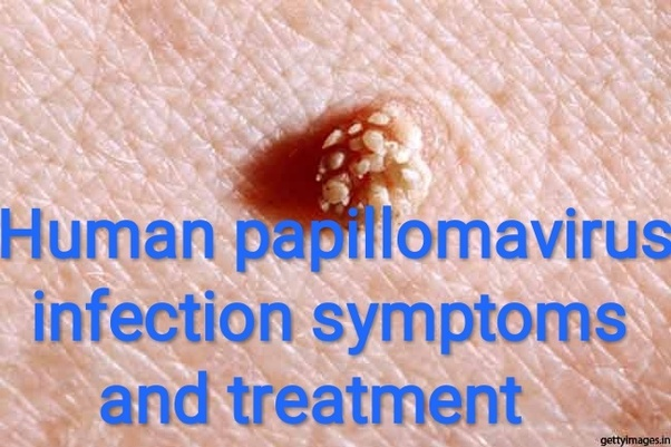 how to get rid of hpv virus for good