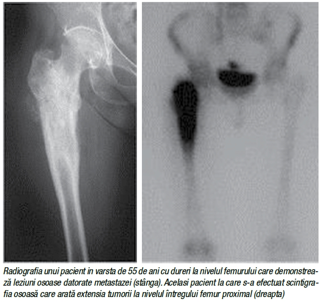 cancer osos in metastaza