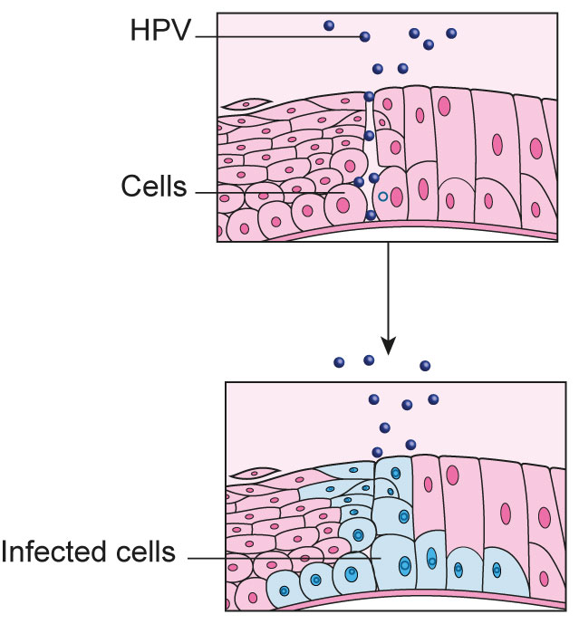 hpv virus and no cervix