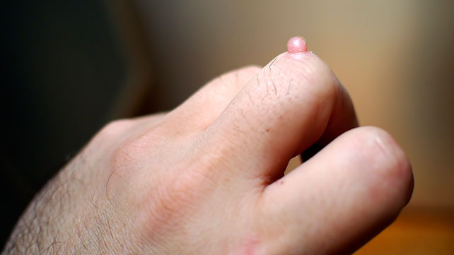 warts on hands pictures