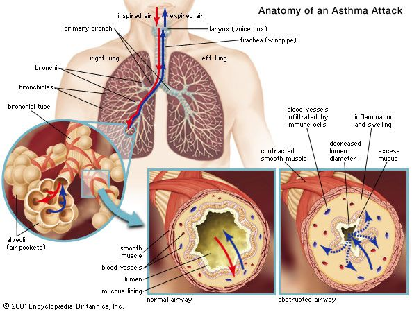 hookworm therapy asthma