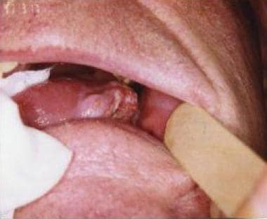 hpv cancer on base of tongue)
