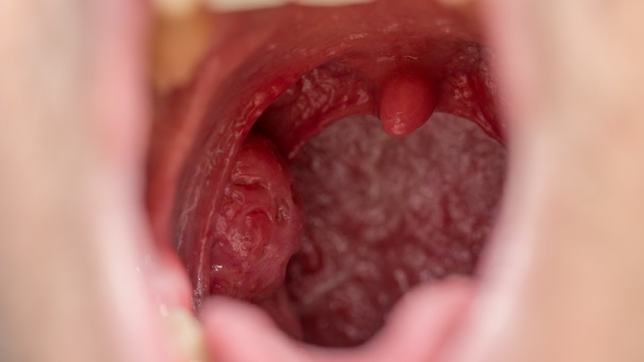 hpv cancer of the tonsil