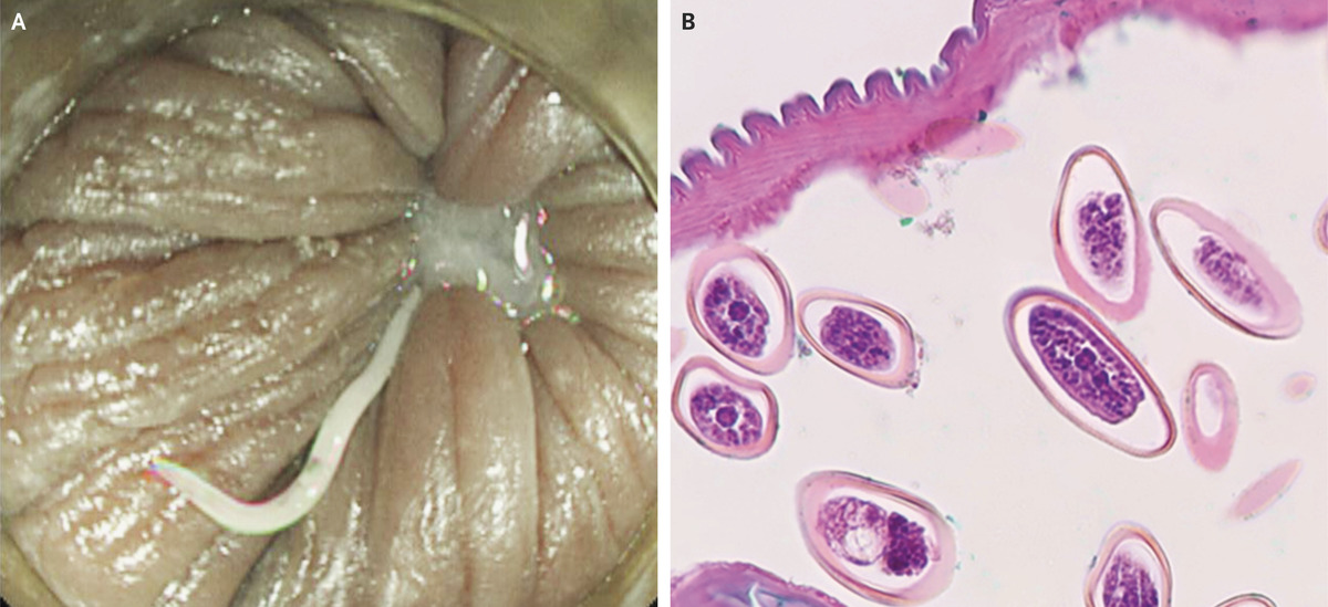 enterobius vermicularis source of infection