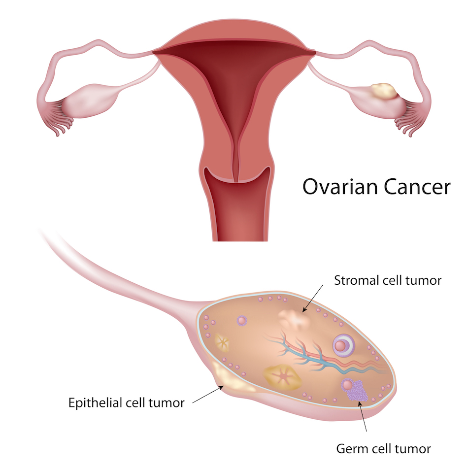 ovarian cancer epithelial tumors