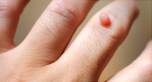 warts on hands bleeding