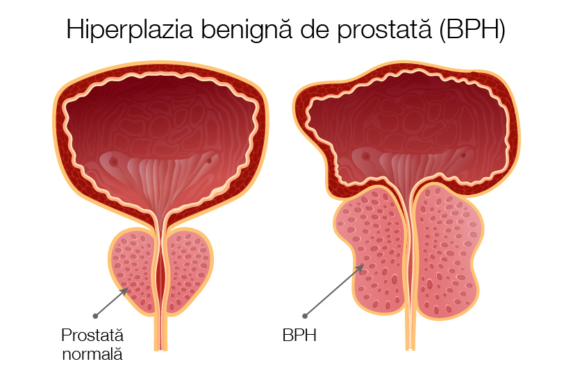 cancer de prostata simptome tratament