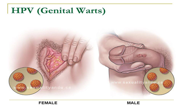 hpv warts virus metastatic cancer colon survival rate