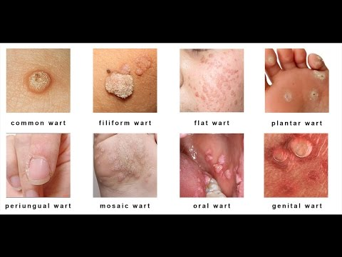 warts on skin types