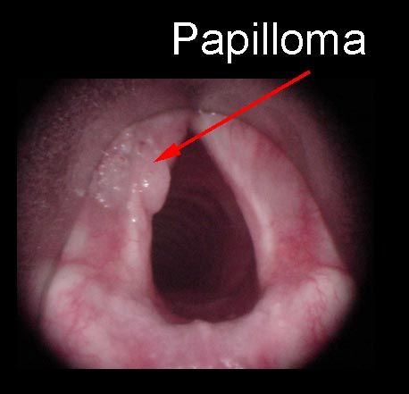 who discovered respiratory papillomatosis)