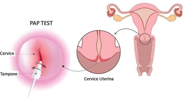papilloma virus si vede dal pap test)