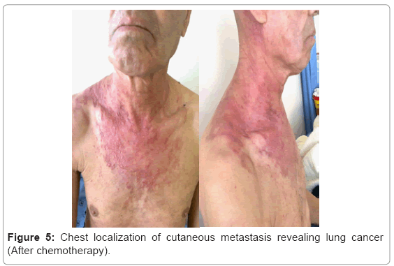 metastatic cancer of the neck