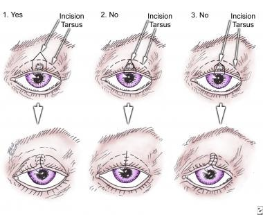 excision papilloma eyelid cpt)