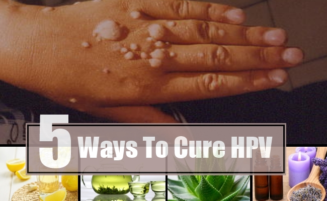 how to get rid of a hpv virus