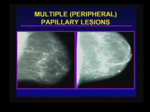 papillary lesion breast cancer)