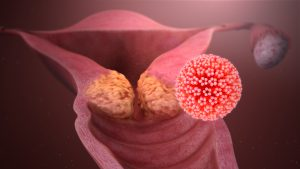 what is human papillomavirus caused by