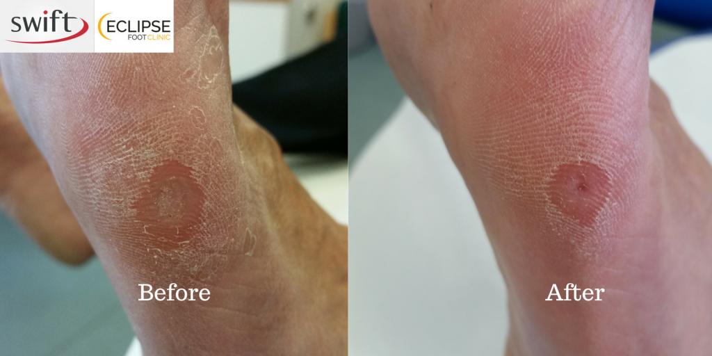 wart treatment silver nitrate)