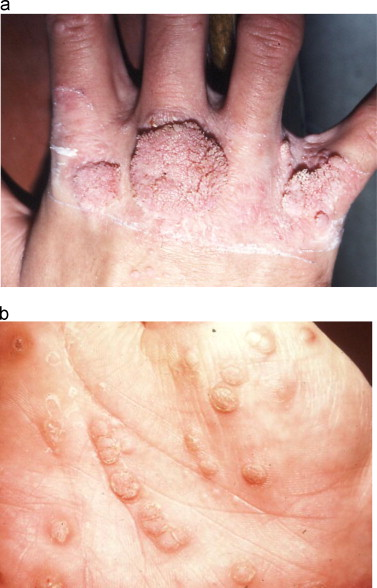 hpv dry skin patches)