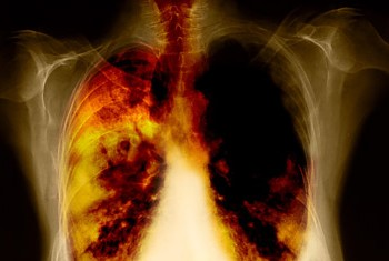 cancer bronhopulmonar metastaze)