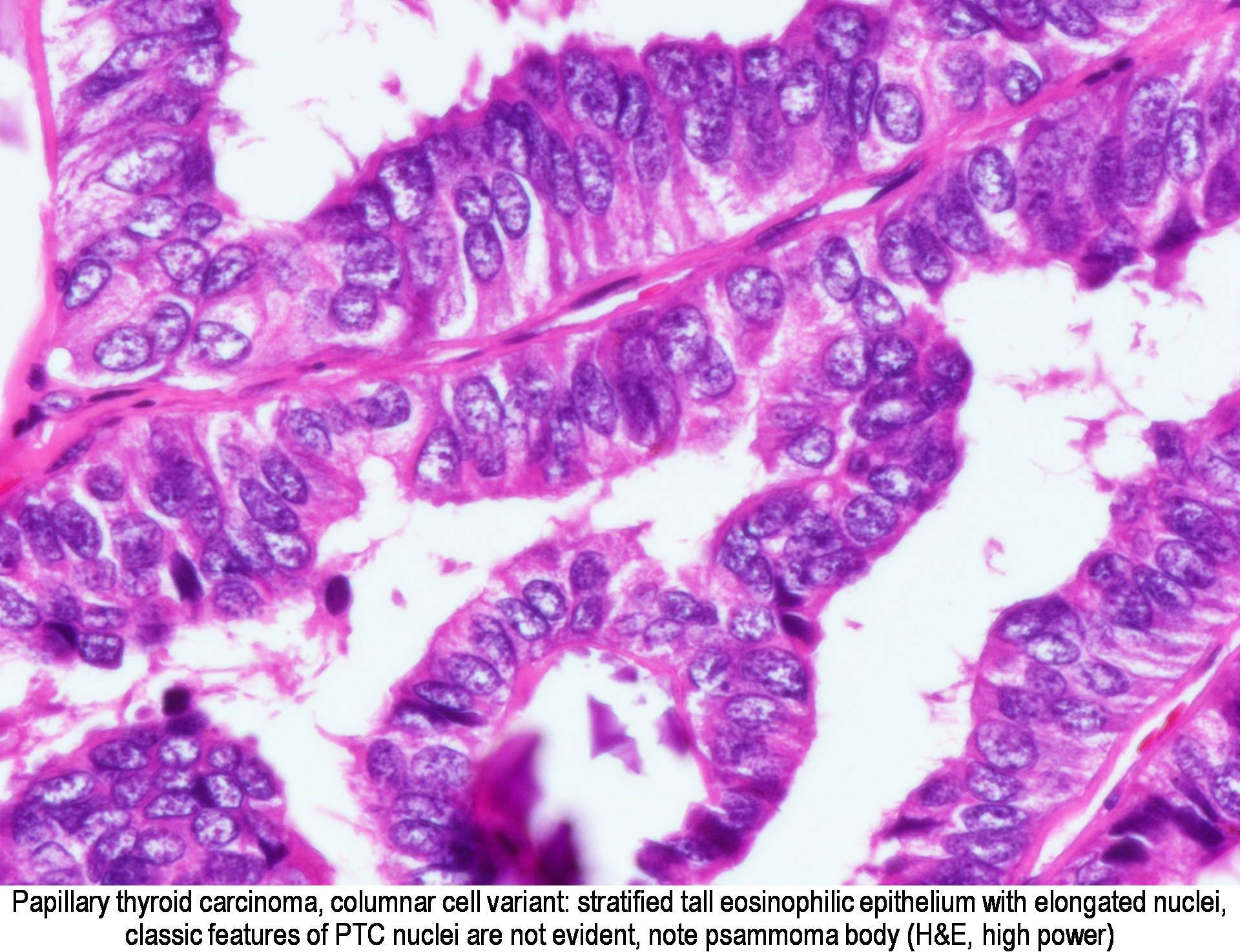 papillary thyroid cancer tall cell variant pathology outlines)