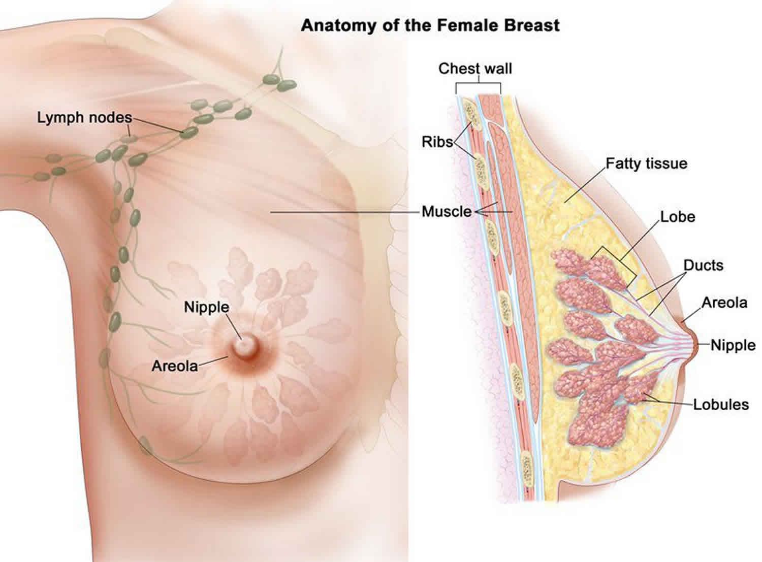 how to remove breast papilloma