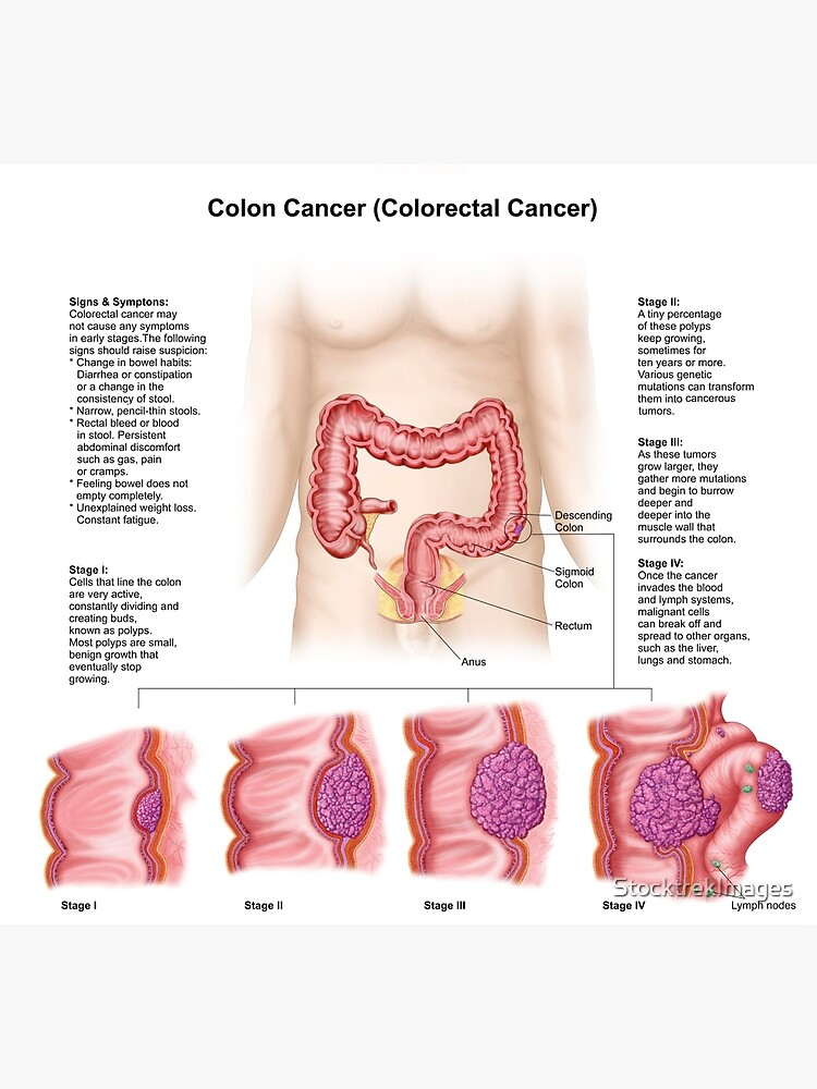 cancer de colon etapas