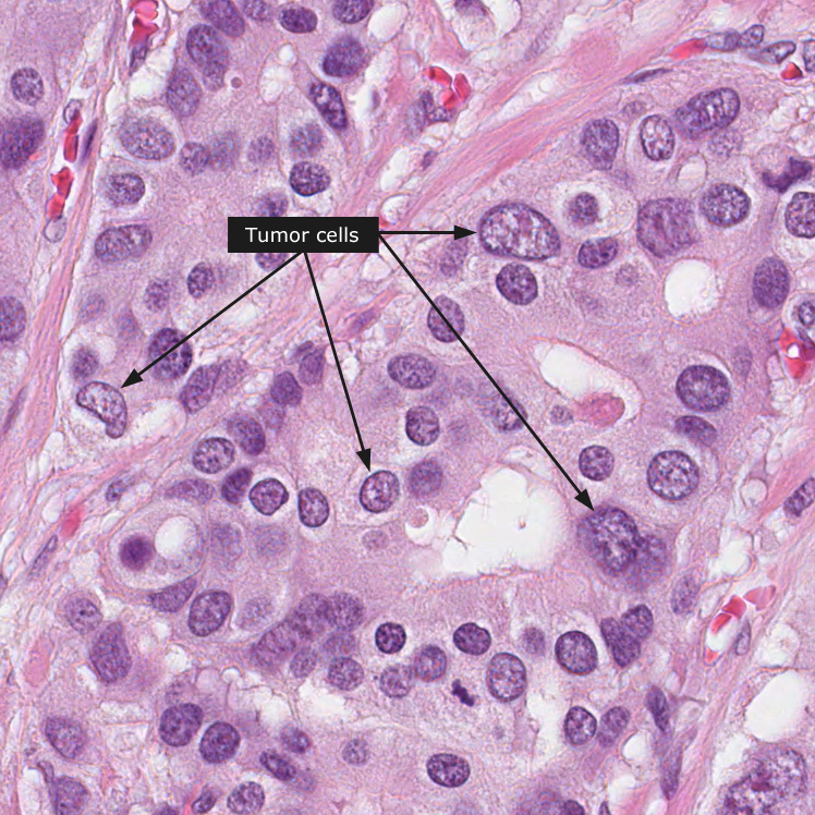 cancer gastric biopsial)