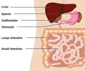 dysbiosis symptoms nhs