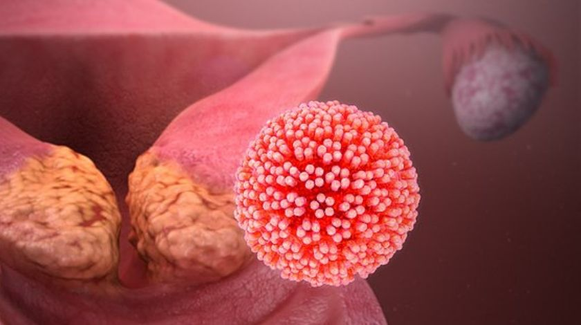 hpv eliminate virus wart foot home remedy