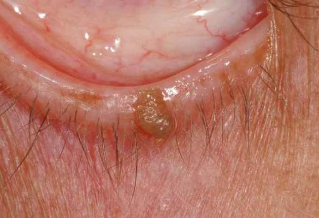 what causes eyelid papilloma)