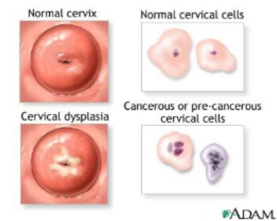 hpv causa cancer