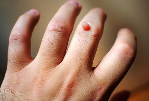 warts on hands that hurt)