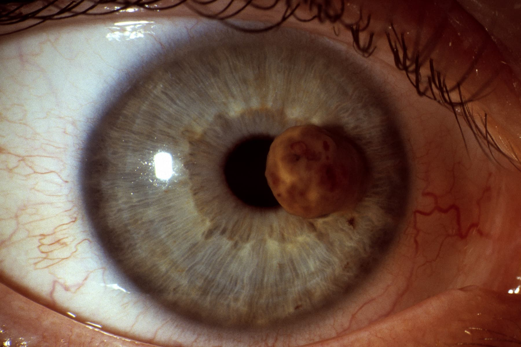 does hpv cause eye cancer)