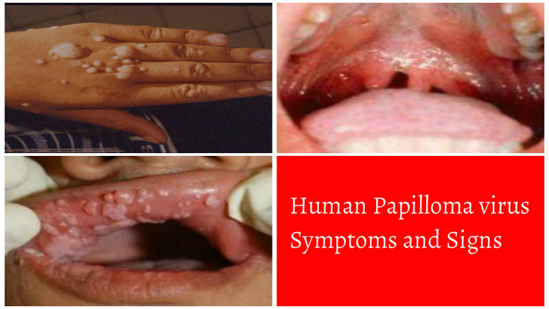 hpv virus how to treat it
