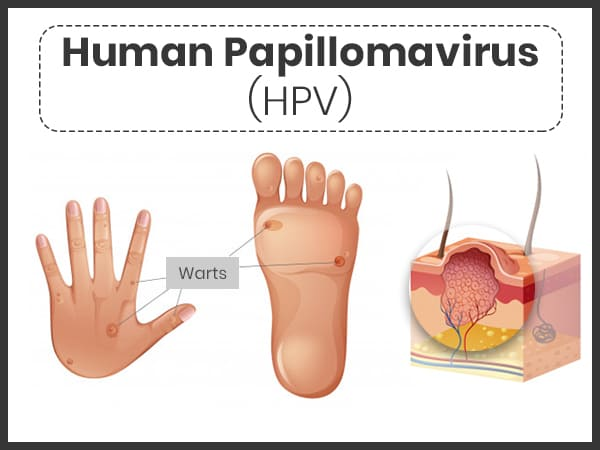 human papillomavirus infection in)