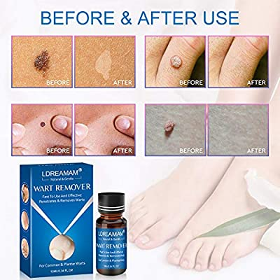 wart liquid foot
