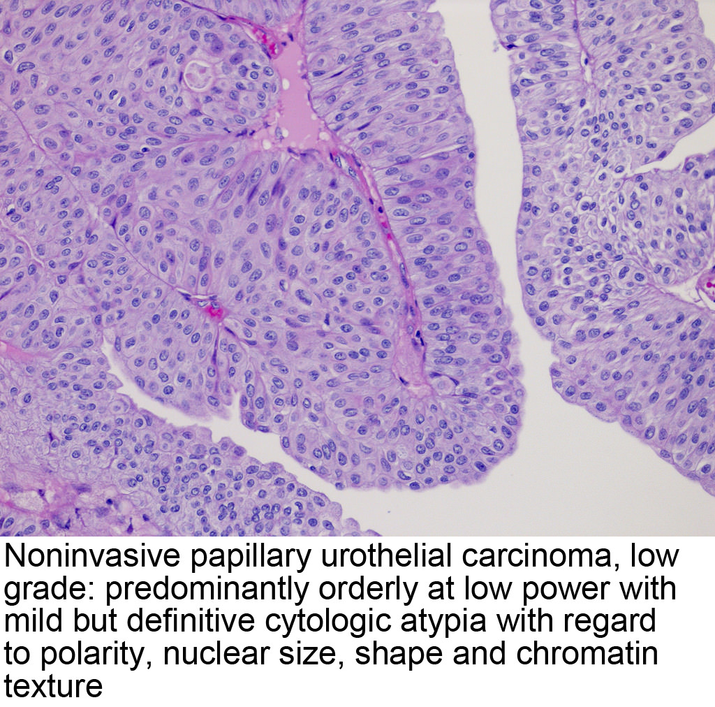 papillary urothelial of carcinoma)