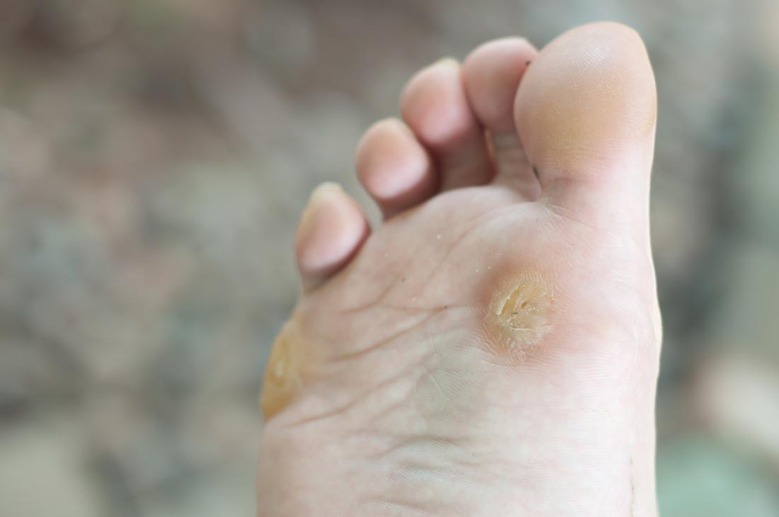 wart on foot is black