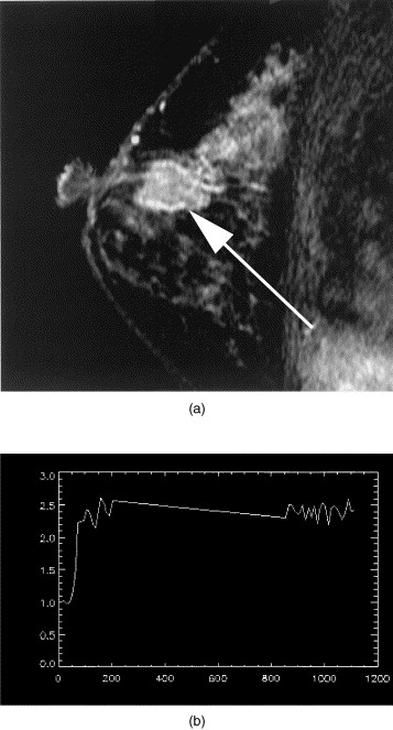 papilloma on breast mri cervical cancer medscape
