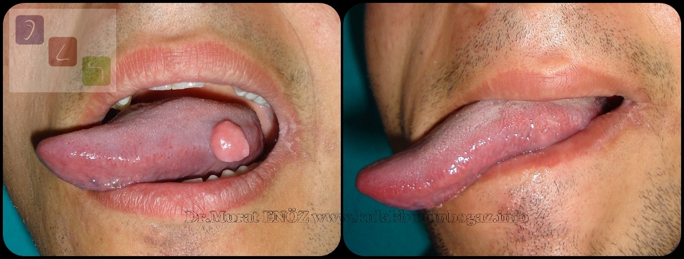 benign wart on tongue)